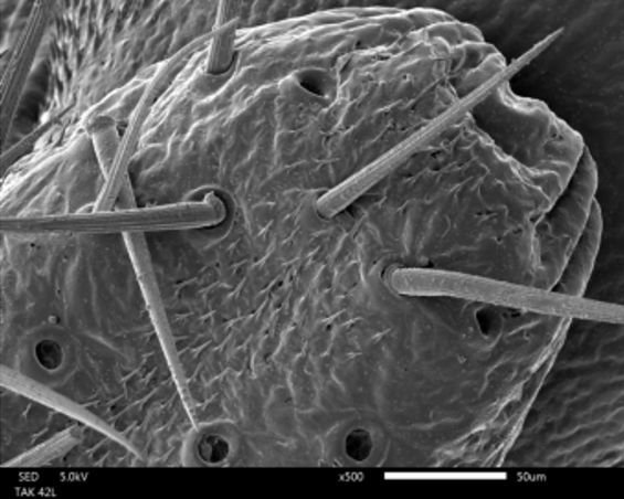 SEM image of the femur of an arthropod.